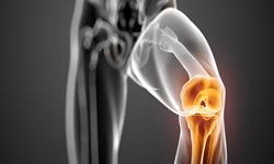 knee-laxity